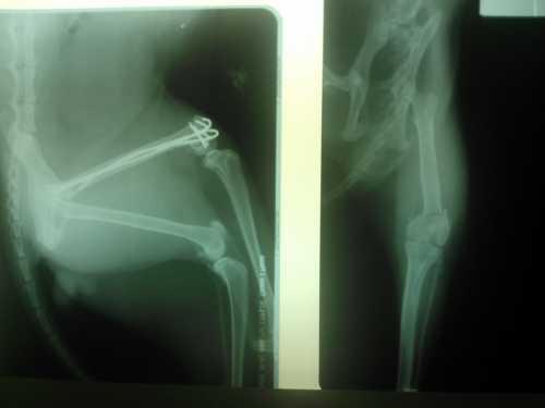 Остеосинтез бедренной кости