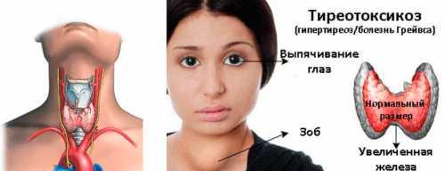 Гипертиреоз у женщин
