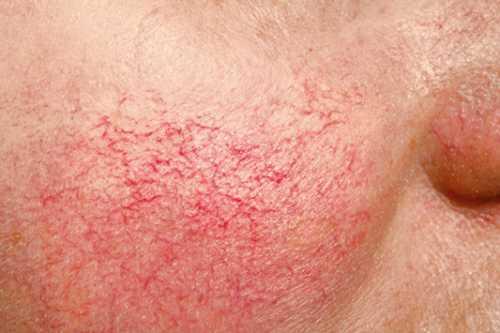 Не менее результативно лечение сосудистых купероза в домашних условиях маслами