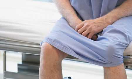 Лечение фимоза у мужчин в домашних условиях: