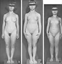 Во время пубертатного периода под влиянием высокого уровня женских гормонов кости таза растут в ширину