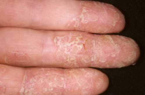 Дополнительно врач может назначить анализы, в частности на наличие аллергических реакций на воздействие внешних раздражителей