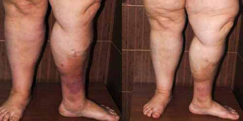 Если сильно промерзают ноги, скорее всего, это связано с нарушениями кровообращения или сбоями в функции нервной системы